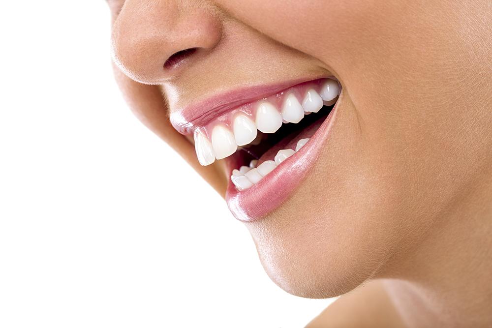 Mit dem Zahnbleaching schenken wir Ihnen wieder ein schneeweißes Lächeln.