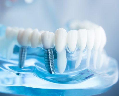 Implantologie beim Zahnarzt Alexandra Zagwodzki möglich – sprechen Sie uns an, wir beraten Sie gerne!