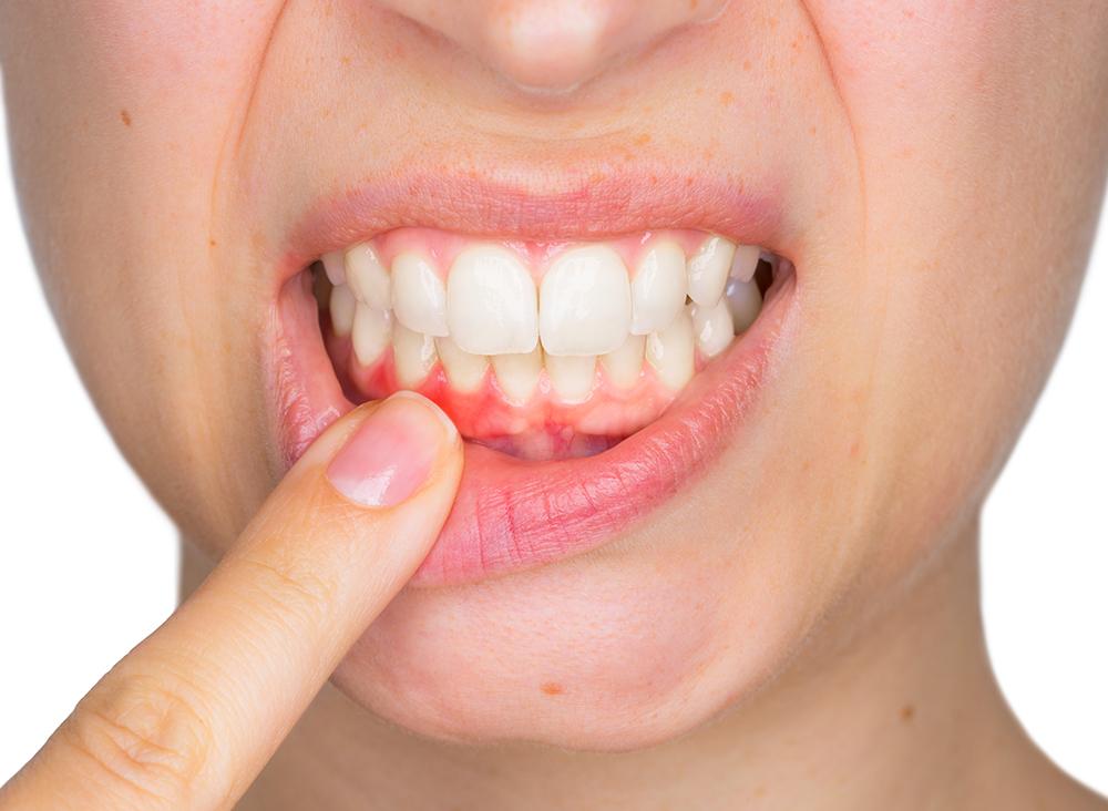 Eine regelmäßige prophylaktische Zahnreinigung schützt die Zähne vor Parodontitis.